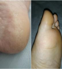 Čarobnica kremica za stopala (gratis poštarina)